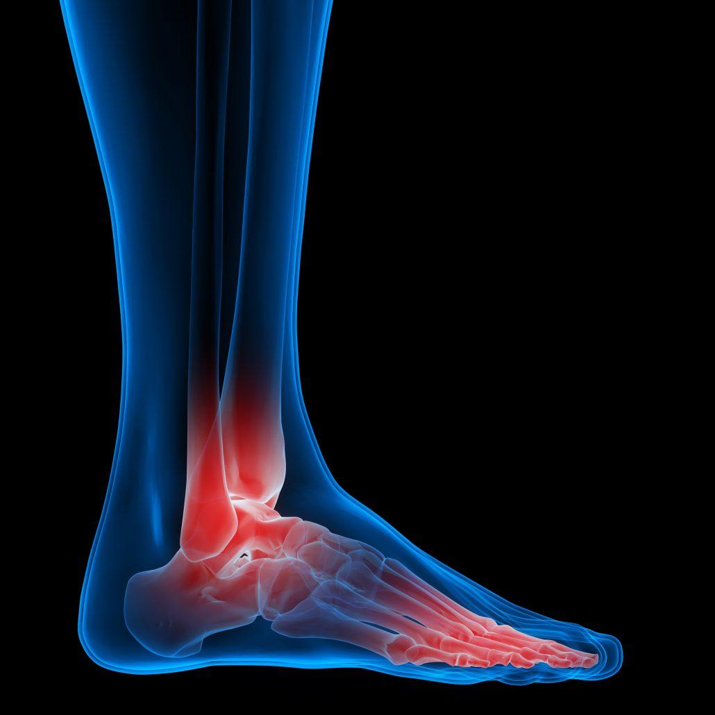foot-pain-numbness